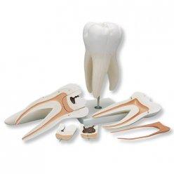 Model lidského zubu - obří stolička s kazy - 5 částí - 15x zvětšeno