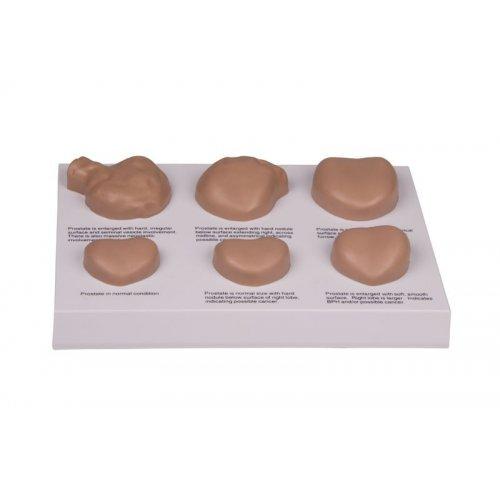 Model onemocnění prostaty - na desce