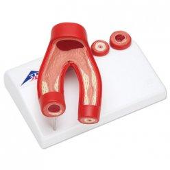 Model kornatění cév s příčným řezem tepnou - 2 části