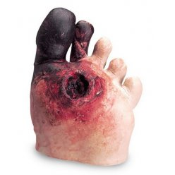 Simulátor diabetické nohy