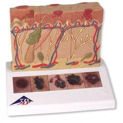Rakovina kůže - model