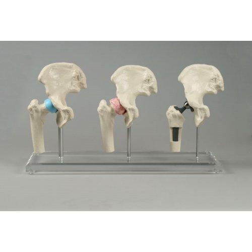 Model kyčelního kloubu s implantátem