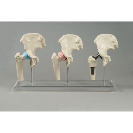 Model kyčelních kloubů s implantátem
