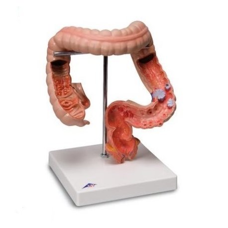 Model onemocnění tlustého střeva