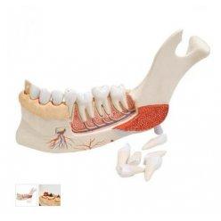 Model poloviny dolní čelisti s 8 nemocnými zuby