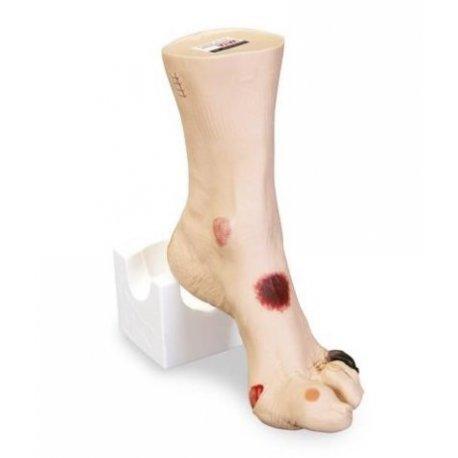 Model zraněné nohy
