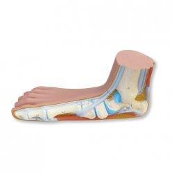 Model lidské nohy - plochá noha