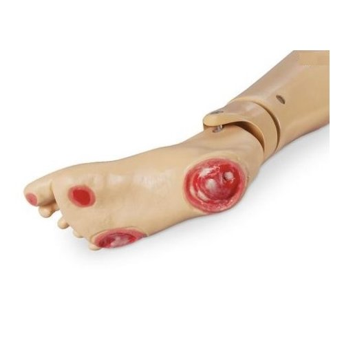 Model nemocné nohy - dekubity