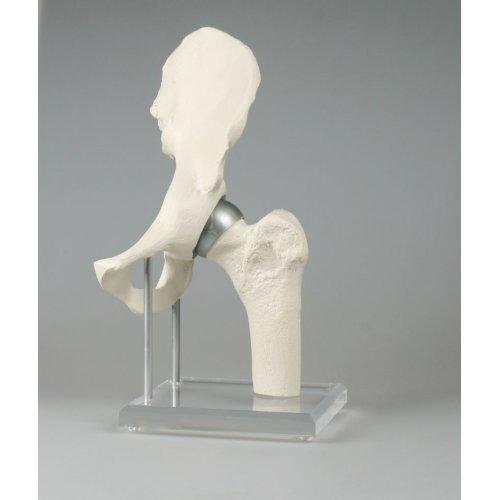 Model kyčelního kloubu s povrchovým implantátem