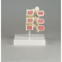 Model 3 lidských obratlů s osteoporózou