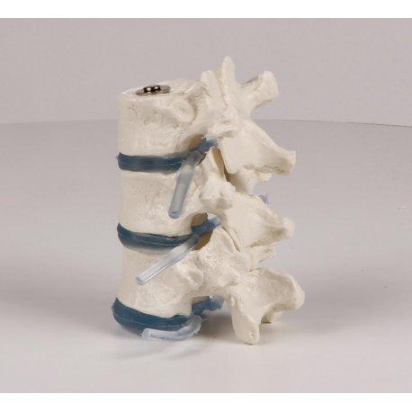Model tří hrudních obratlů