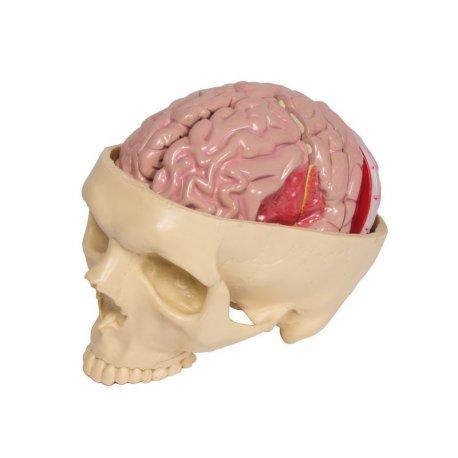 Model nemocí mozku