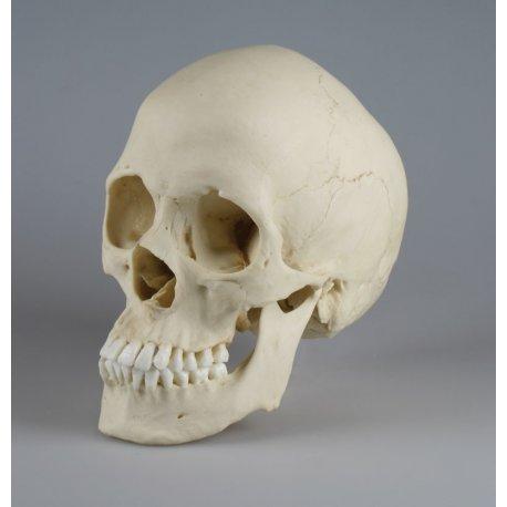 Model skafocefalické lebky
