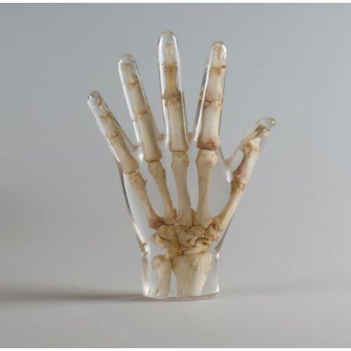 Model lidské ruky pro RTG vyšetření, průhledný