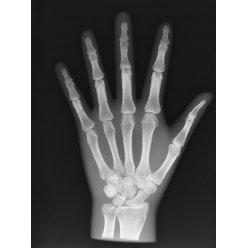 Model lidské ruky pro RTG vyšetření, neprůhledný