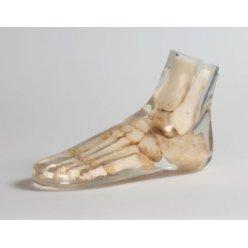 Model lidské nohy pro RTG vyšetření, průhledný