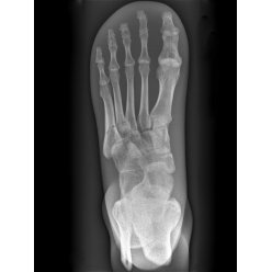 Model lidské nohy pro RTG vyšetření, neprůhledný