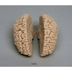 Odlitek lidského mozku