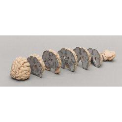 Set frontálních řezů lidského mozku