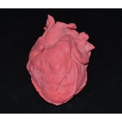 Model dětského srdce s defektem komorového septa