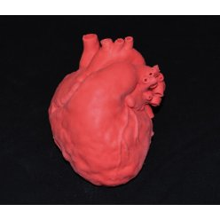 Model dětského srdce s defektem síňového septa