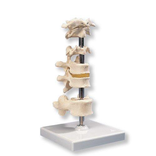 Model šesti lidských obratlů na podstavci