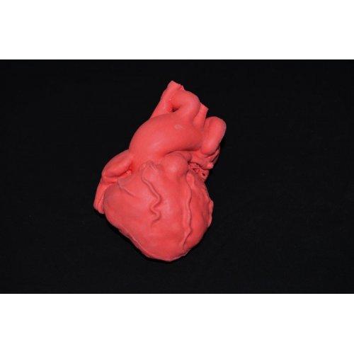 Model dětského srdce s Fallotovou tetralogií