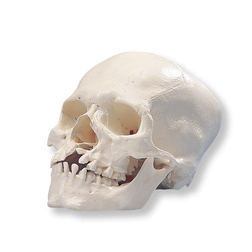 Model lidské lebky - mikrocefalická