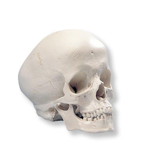 Model lidské lebky - hydrocefalická