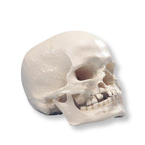 Model lidské lebky s rozštěpem čelisti a patra