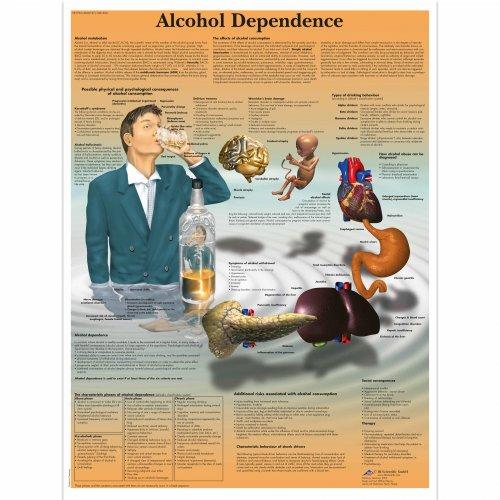 Schéma - závislost na alkoholu - AJ - 50x67 cm