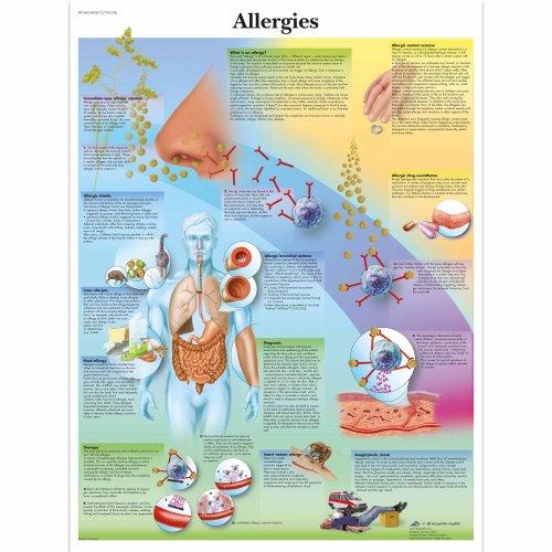 Schéma - alergie - AJ - 50x67 cm