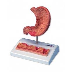 Model lidského žaludku s vředy