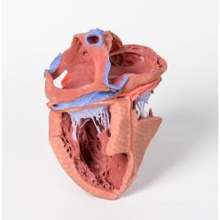 Vnitřní struktury srdce