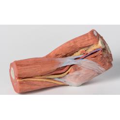 Loketní jamka - svaly, velké nervy a pažní tepna