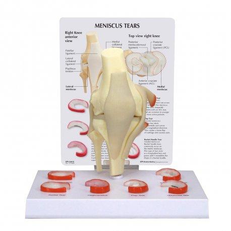 Model přetržení menisku kolenního kloubu