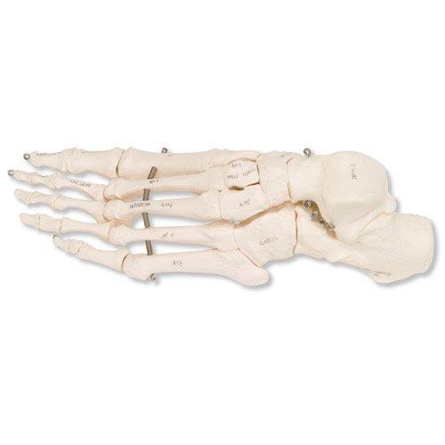 Model kostry lidské nohy spojené drátem