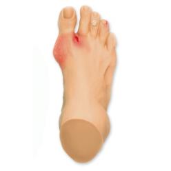 Model chodidla - nejčastější patologie