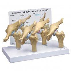 Čtyři stádia osteoartritidy kyčelního kloubu