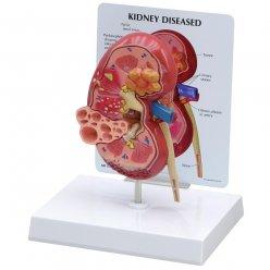 Model lidské ledviny - anatomický - s onemocněním