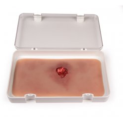 Odlitek rány - otevřená zlomenina - paže s funkcí krvácení