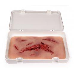 Odlitek rány - tržná rána - velká s funkcí krvácení