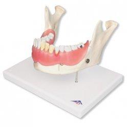 Model zubního onemocnění - 2x zvětšeno - 21 částí
