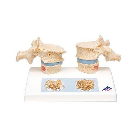 Model dvou lidských hrudních obratlů s osteoporózou